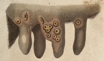 Cowpox_Engraving_(detail)