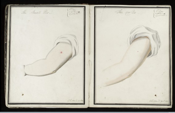 L0039159 Smallpox (left) & cowpox inoculation, day 2