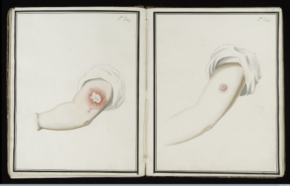 L0039165 Smallpox (left) & cowpox inoculation, day 8