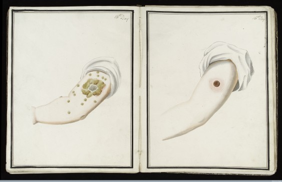 L0039173 Smallpox (left) & cowpox inoculation, day 16